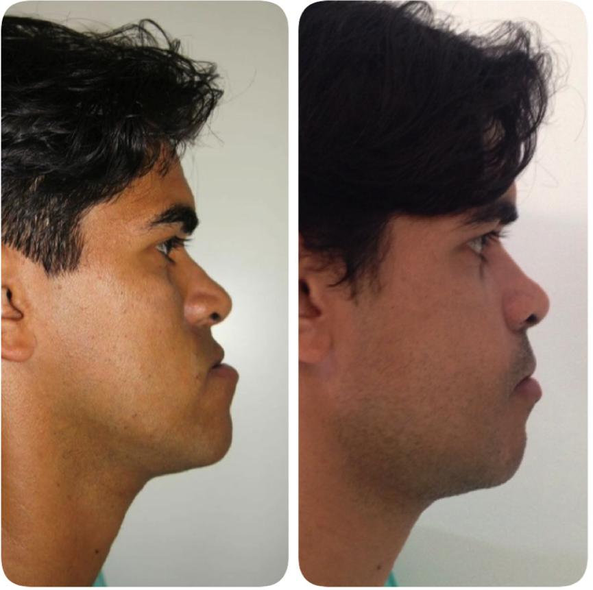 cirurgia-bucomaxilofacial-2