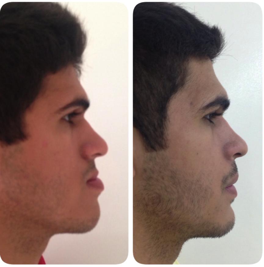 cirurgia-bucomaxilofacial-3