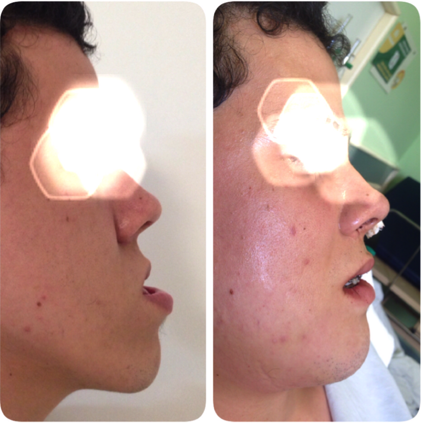 cirurgia-bucomaxilofacial-4